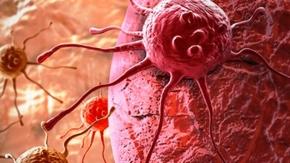 Kanser hücrelerini öldüren mucize reçete